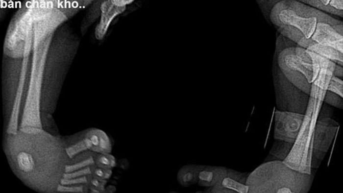 Bé gái Hà Giang 2kg bị khoèo chân, bác sĩ quyết thay đổi lỗi tạo hoá