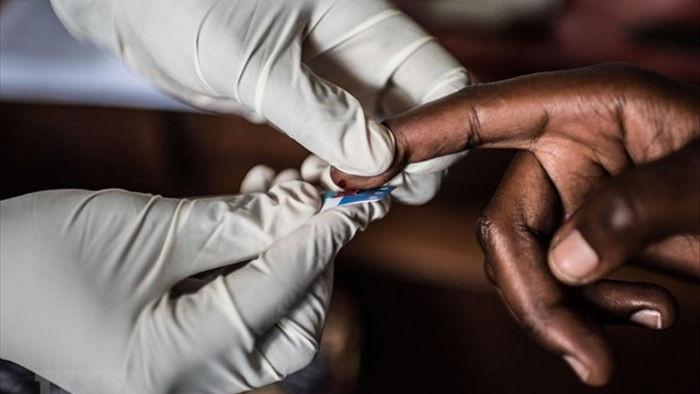 Buoc dot pha tiem nang trong dieu tri can benh HIV/AIDS hinh anh 1
