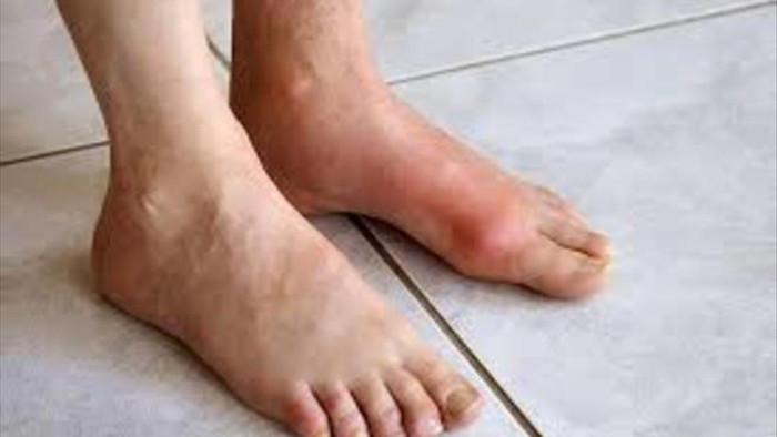 7 căn bệnh phổ biến liên quan đến béo phì - 7