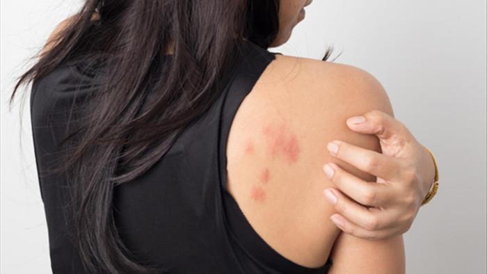 Những vết mẩn đỏ cảnh báo căn bệnh ung thư phổ biến