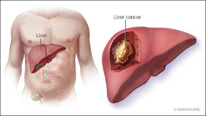 Đũa có dấu hiệu này cần vứt bỏ ngay để tránh rước ung thư vào người - 3