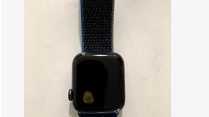 Apple Watch SE gặp lỗi quá nhiệt, khiến người dùng bị bỏng và làm hỏng màn hình - Ảnh 3.