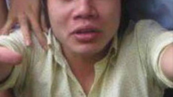 Bị NSƯT Công Ninh đánh rớt vì xấu, Lê Dương Bảo Lâm phải bán nhẫn, dây chuyền phẫu thuật - Ảnh 4.
