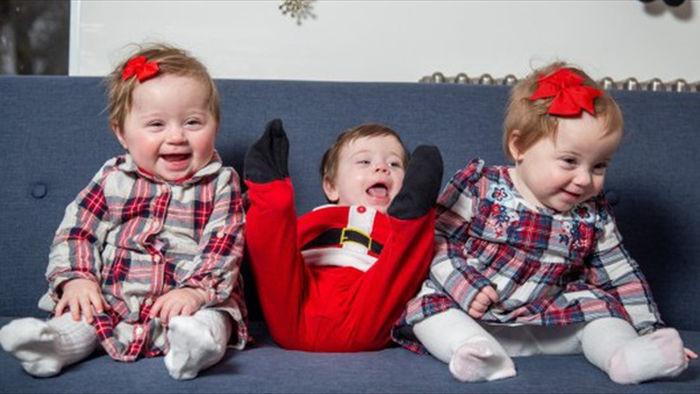 Kỳ diệu ca sinh 3 từ hai tử cung riêng biệt của một bà mẹ - 2