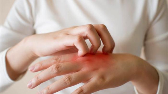 Ba triệu chứng trên da cảnh báo gan nhiễm mỡ