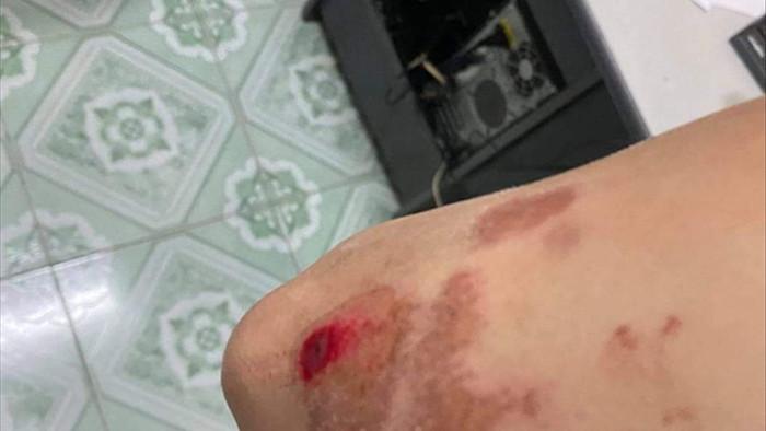 Thầy giáo lái xe biển xanh bị tố hành hung người đi đường ở Thái Bình