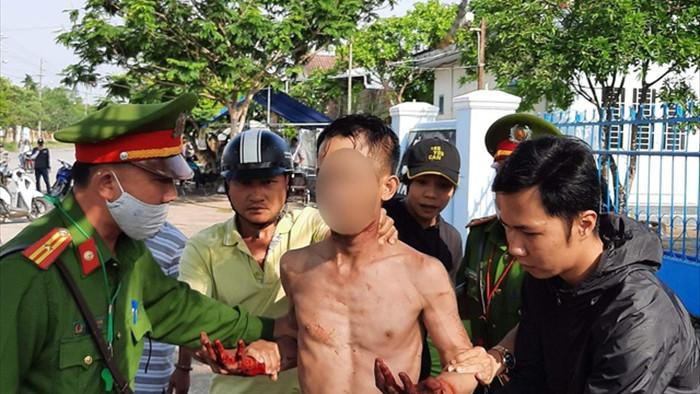 Nam thanh niên cầm dao tự cắt cổ, miệng liên tục la hét giết người - 1
