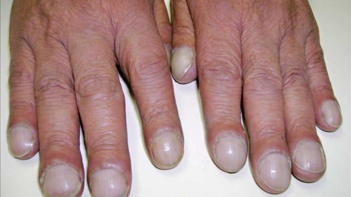 Không hút thuốc mà vẫn bị ung thư phổi, cô gái khóc nấc khi lỡ chủ quan bỏ qua dấu hiệu nguy hiểm này ở ngón tay - Ảnh 2.