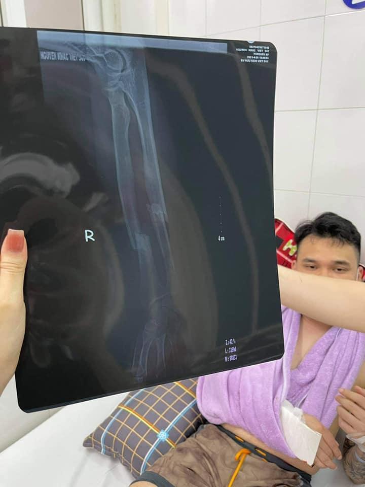 Tình hình sức khỏe Khắc Việt sau ca phẫu thuật-2