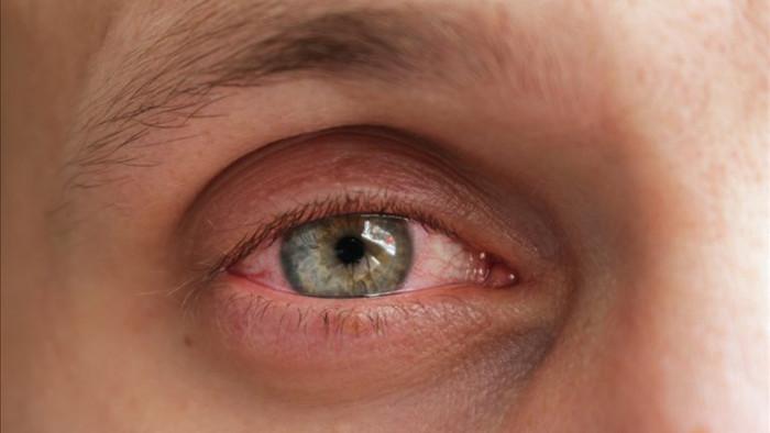 11 triệu chứng và biến chứng mới của bệnh COVID-19 - Ảnh 9.