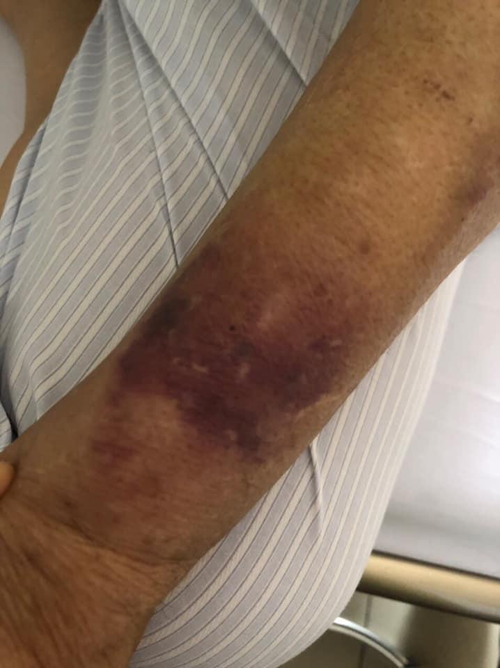 Giang Còi lạc quan dù bệnh nặng, phải lấy ven chân vì tay sưng to bầm tím-2