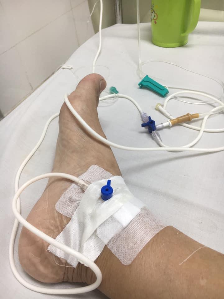 Giang Còi lạc quan dù bệnh nặng, phải lấy ven chân vì tay sưng to bầm tím-3