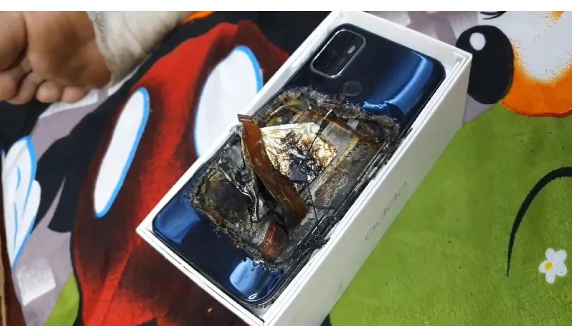 Smartphone phát nổ trong túi quần khiến chủ nhân bị thương nặng-1