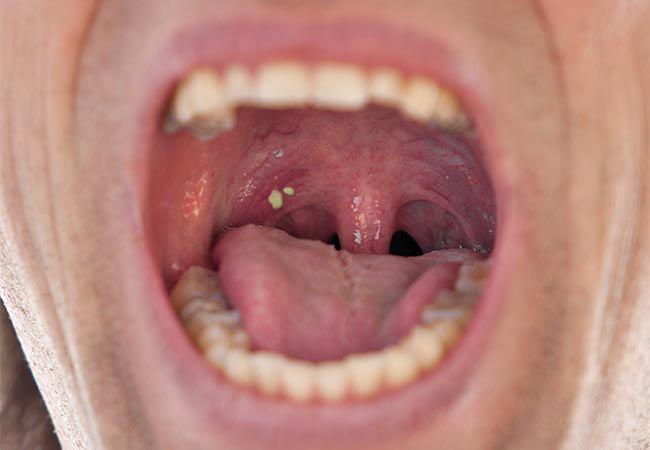 Yêu kiểu mới với bạn trai, nữ sinh sợ hãi khi thấy u trong miệng, đi khám mới ngỡ ngàng-4
