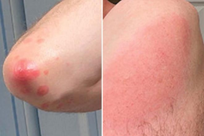 4 tác dụng phụ sau khi tiêm vaccine COVID-19 trên da hay gặp nhất: Có đáng lo ngại không?-2