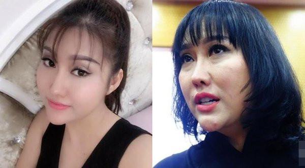 Phi Thanh Vân bị phẫu thuật thẩm mỹ lỗi