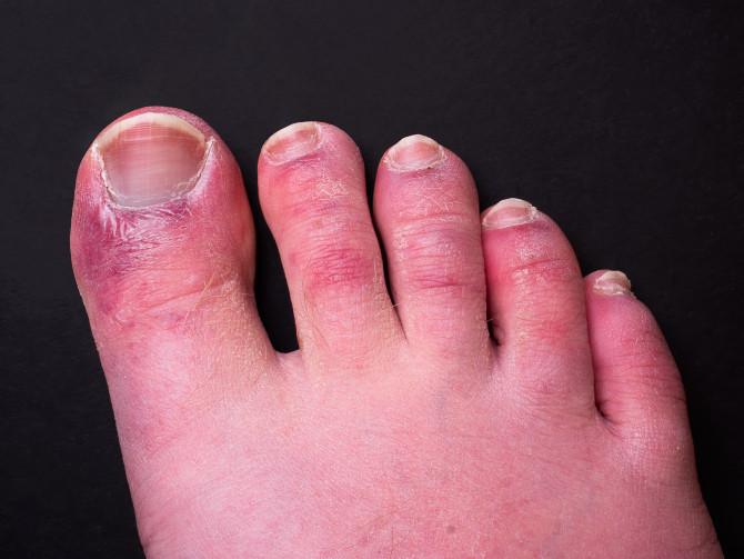 21 triệu chứng COVID-19 cần biết ngay lập tức-3