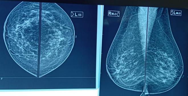 Phụ nữ có bộ ngực lớn, mô vú dày có thể đối mặt với nguy cơ ung thư vú - Ảnh 2.