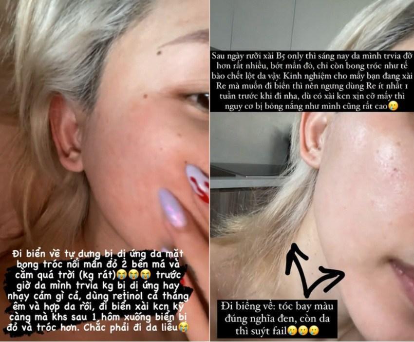 Á hậu Tú Anh toang mặt vì dùng hoạt chất Retinol peel da-5