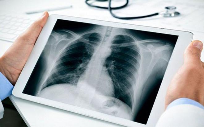 Dấu hiệu cần đi khám phổi gấp - Ảnh 2.