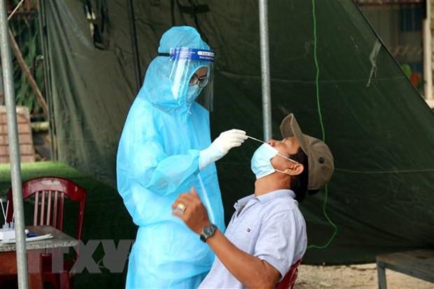 Dong Nai: 17.000 cong nhan tam nghi do co ca duong tinh voi SARS-CoV-2 hinh anh 1