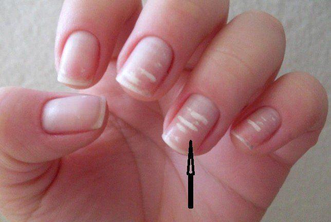 Đốm trắng trên ngón tay nói lên điều gì về sức khỏe?