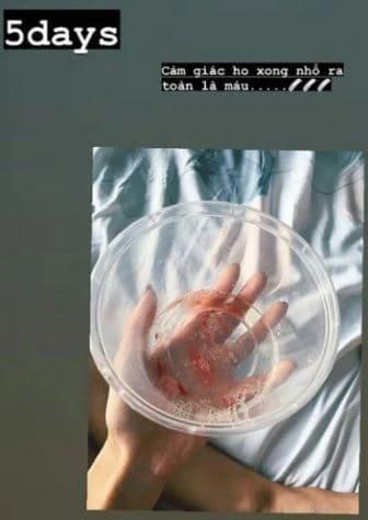 Khả Ngân lên tiếng về loạt ảnh da bọc xương, ho ra máu-2