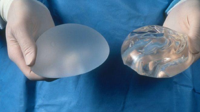 """Túi nâng ngực - Những thông tin quý giá với phụ nữ có ý định """"nâng cấp"""" vòng 1 - Ảnh 5."""