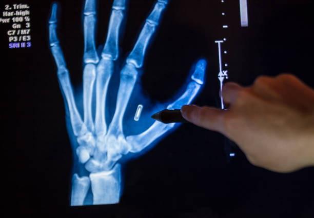 Bác sĩ cấy loạt chip điện tử vào tay để thay cho chìa khóa, thẻ ngân hàng… - 3