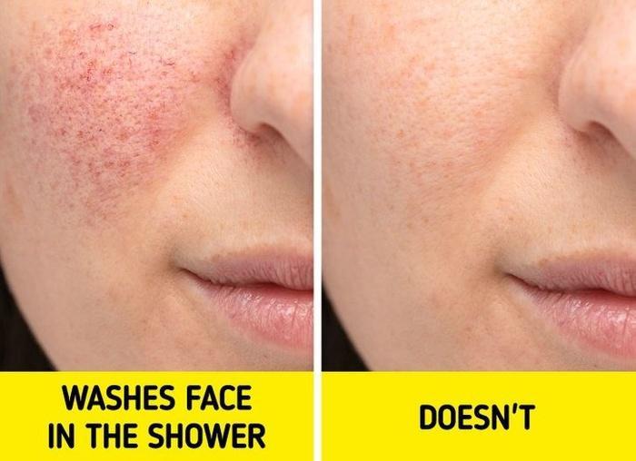 Nghe lạ mà thật: Rửa mặt dưới vòi hoa sen dễ hình thành nếp nhăn xấu xí-2