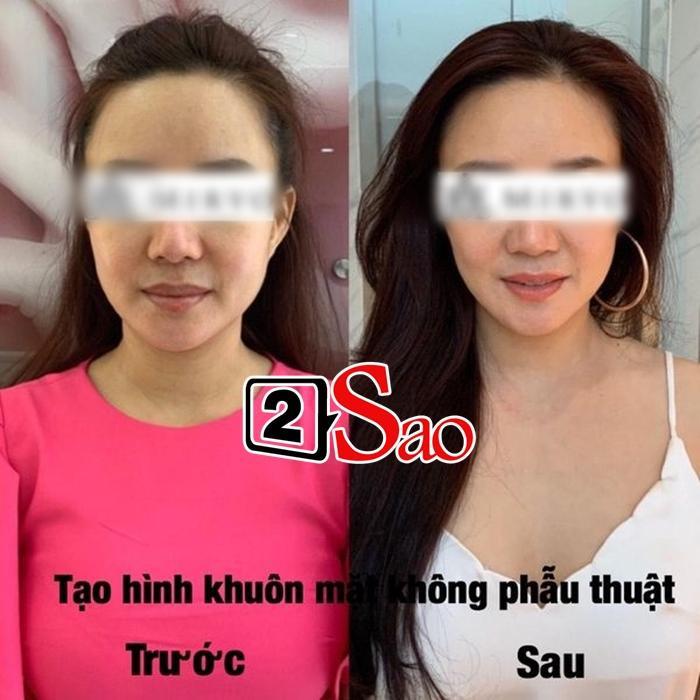 Vy Oanh thừa nhận có đi hút mỡ-1