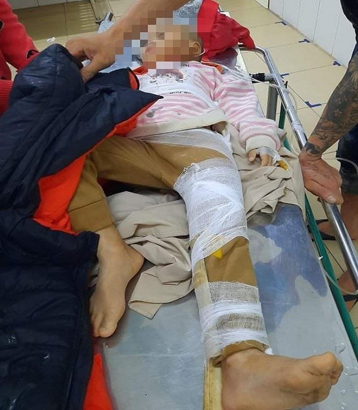 Hà Tĩnh: Mưa lớn nhiều ngày, đất đá đổ sập nhà dân, 2 cháu nhỏ bị thương - 2