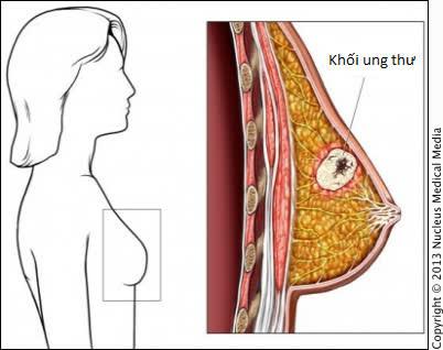 Chế độ dinh dưỡng giúp bệnh nhân ung thư vú nhanh hồi phục sức khỏe - Ảnh 2.