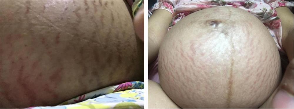 Các mẹ bầu đồng loạt khoe bụng đầy vết rạn thâm đen dưới bài đăng của Hòa Minzy: Những dấu tích của sự hi sinh, của tình yêu thương vô bờ bến-3